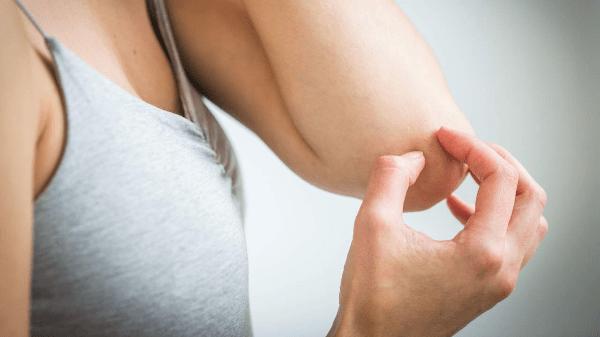 женщина чешет руку