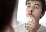Кровь из носа у мужчины