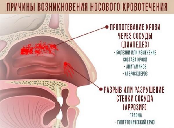Кровь из носа причины