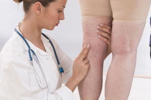 врач осматривает варикоз на ногах
