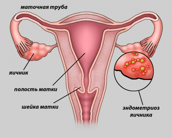 картинка эндометриоза