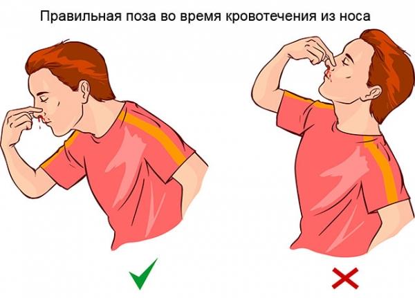 поза при остановке крови из носа