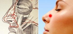точка пережатия для остановки носового кровотечения