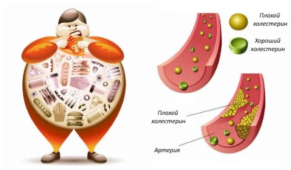 схематичная картинка холестерина