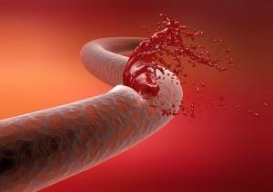 Кровотечение из носа при беременности на ранних сроках thumbnail