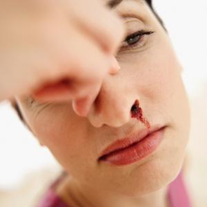 кровь из ноздри