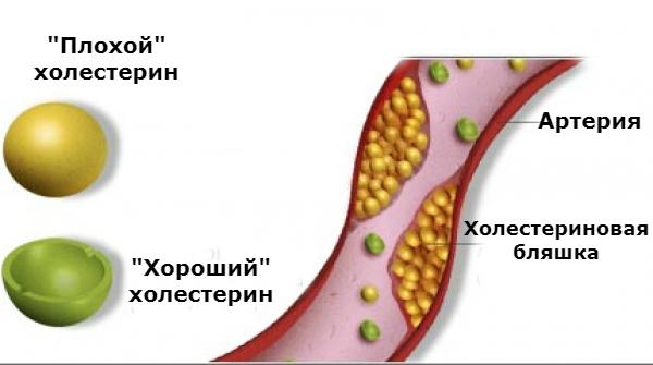 фракции холестерина в артерии