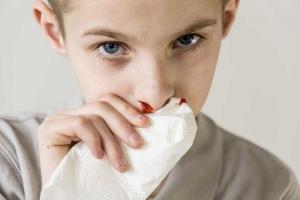 у мальчика идет кровь из носа