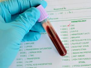 пробирка с кровью и бланк анализов
