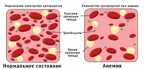 схема анемии