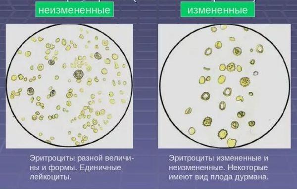 эритроциты в моче
