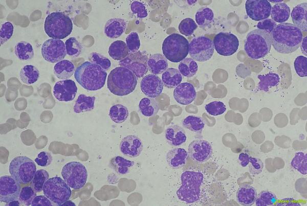 Эозонофильный лейкоцитоз