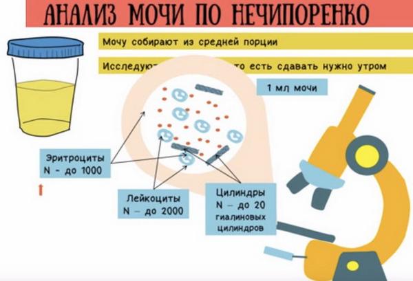анализ по нечипоренко