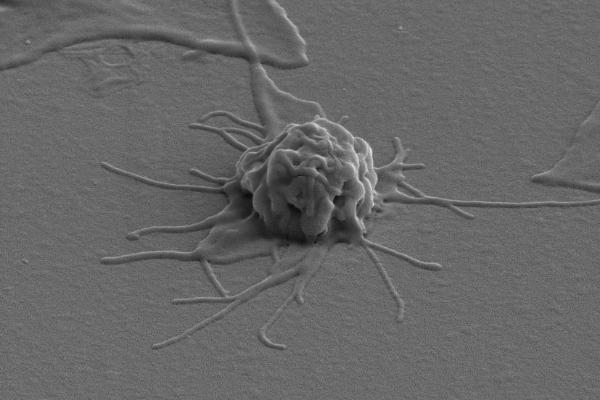 тромбоцит с фибриногеном