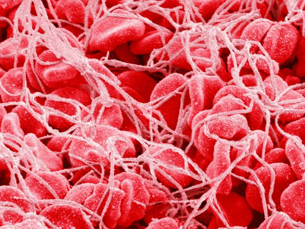 Норма тромбоцитов в крови у мужчин