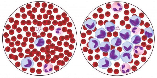 анализ крови, микроскоп
