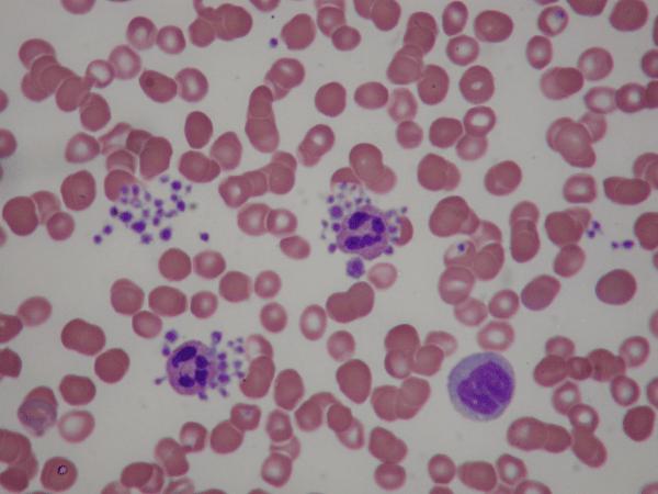 тромбоцитопения под микроскопом