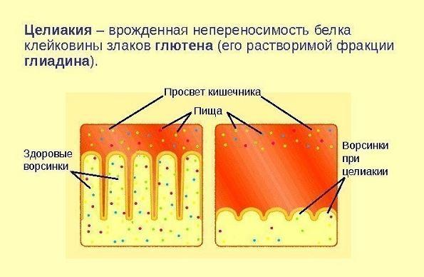 целиакия рисунок кишечника