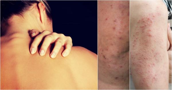 аллергия на глютен проявления