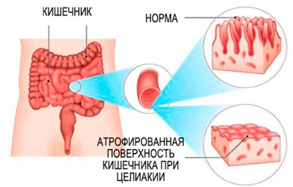 повреждение кишечника