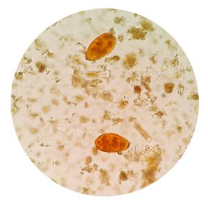 копрограмма под микроскопом