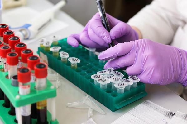 общий анализ крови, лаборатория