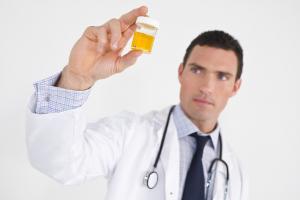 мужчина врач держит баночку с анализом мочи