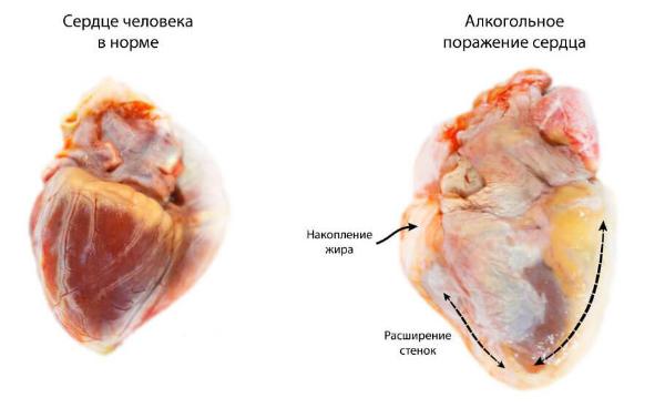 нормальное сердце и пораженное