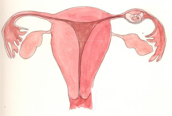 беременность в трубе
