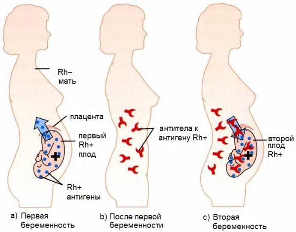вторая беременность, резус-конфликт