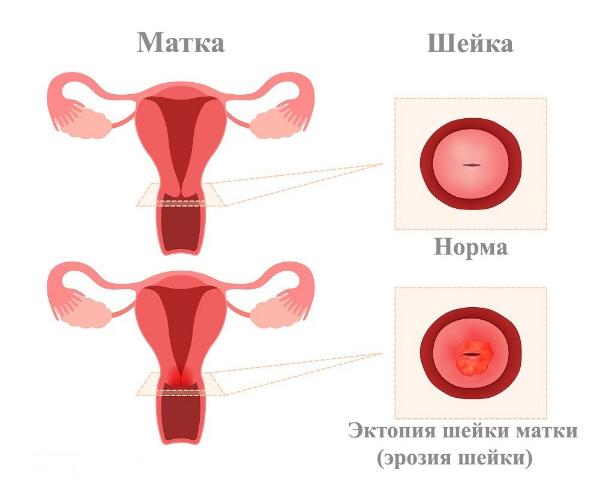 норма и патология шейки матки