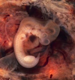 зародыш