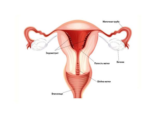 эндометрит, картинка