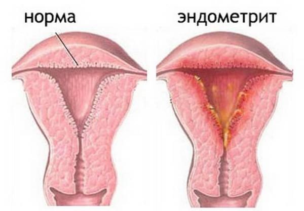 эндометрит и норма