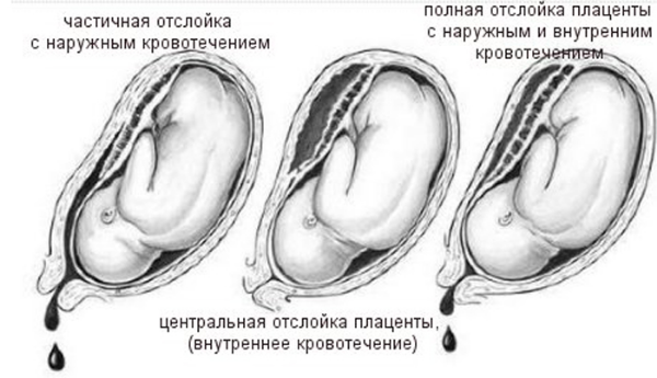 отслойка плаценты рисунок