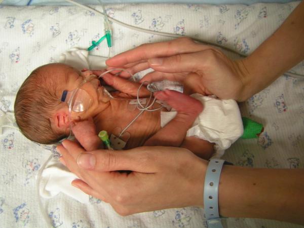 новорожденный в 28 недель