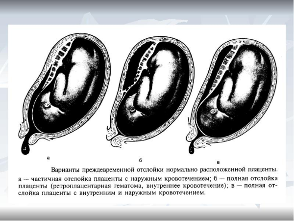 отторжение плаценты