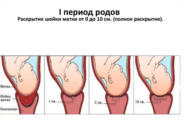раскрытие шейки матки