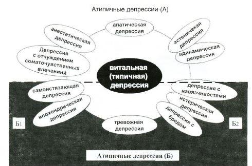 атипичные депрессии, схема