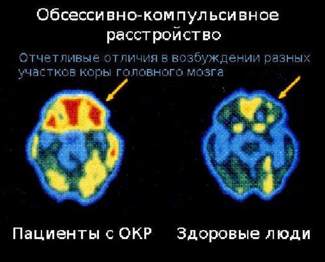 мозг мрт