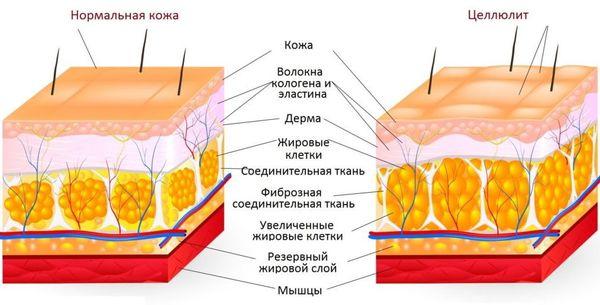 патогенез целлюлита