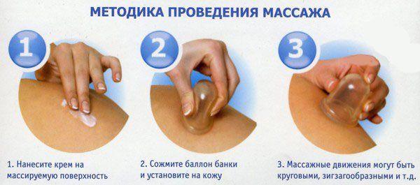 методика массажа банками